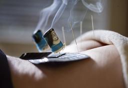 Doppelter Nutzen? Eine Methode der traditionellen chinesischen Medizin verbindet Akupunktur mit dem Verbrennen von Kräutern.