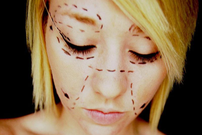Alles scheint korrigierbar: Spuren der Schönheitschirurgie. Foto: Aimee Heart (Flickr)