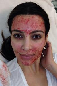 Ein Fan des Vampir-Lifting: Kim Kardashian nach der Behandlung. (Bild: Kim Kardashian/Instagram)